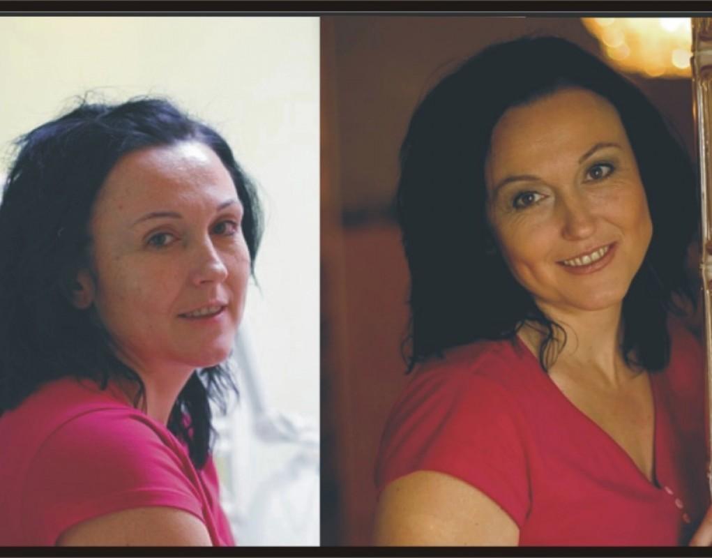 Kosmetika - Před a Po